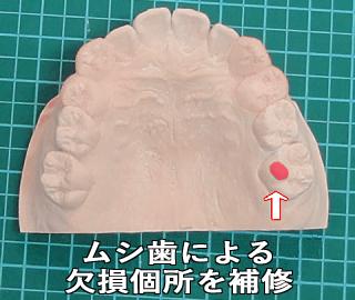 マウスピース 製作 虫歯